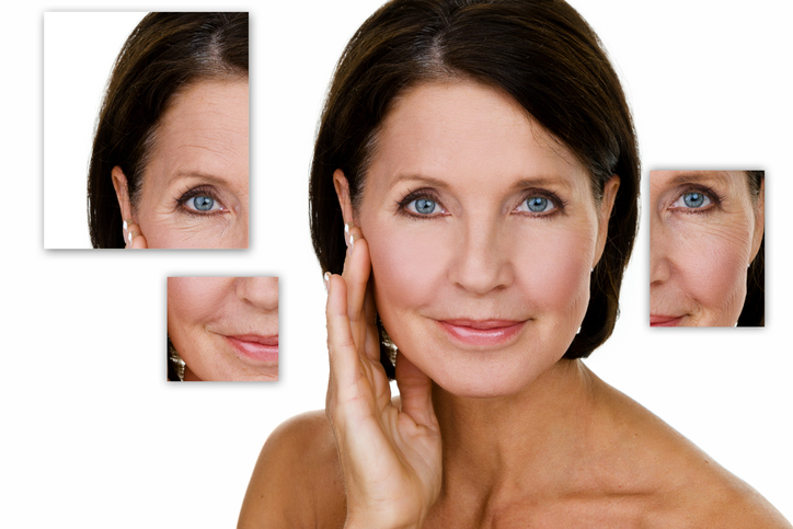 Vivace Fractional Microneedle West Palm Beach | Dr  Mark