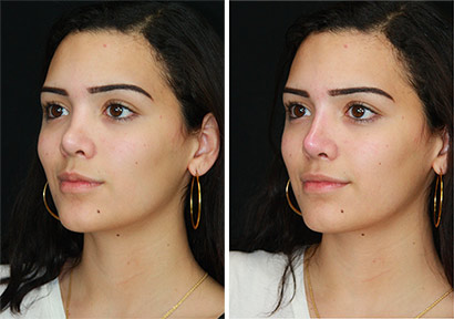 best sneakers 07bd9 f3f21 Non Surgical Rhinoplasty Before   Afters
